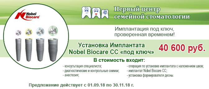 Акция на установку имплантов Nobel Biocare Replace за 40600
